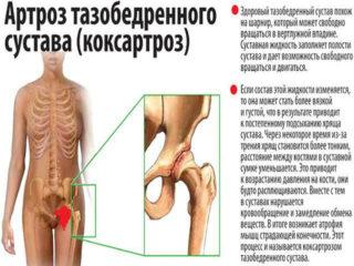 Обезболивающие уколы при артрозе тазобедренного сустава