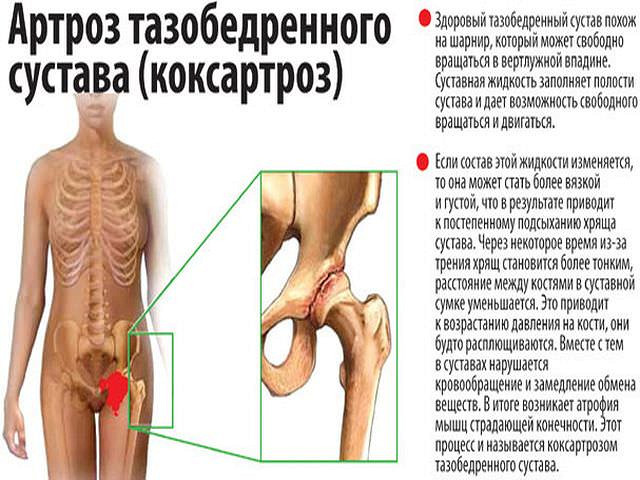 состояние и функцию коленных суставов