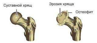 Субхондральный склероз крыши вертлужной впадины тазобедренного сустава