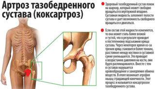Степпер заболевания суставов