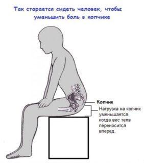 Зуд и боль кожи на копчике у мужчин и женщин причины лечение и профилактика