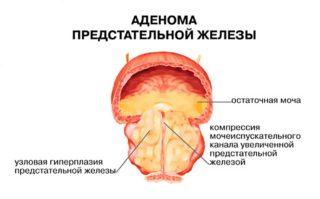 Боль в лобковой кости у мужчин