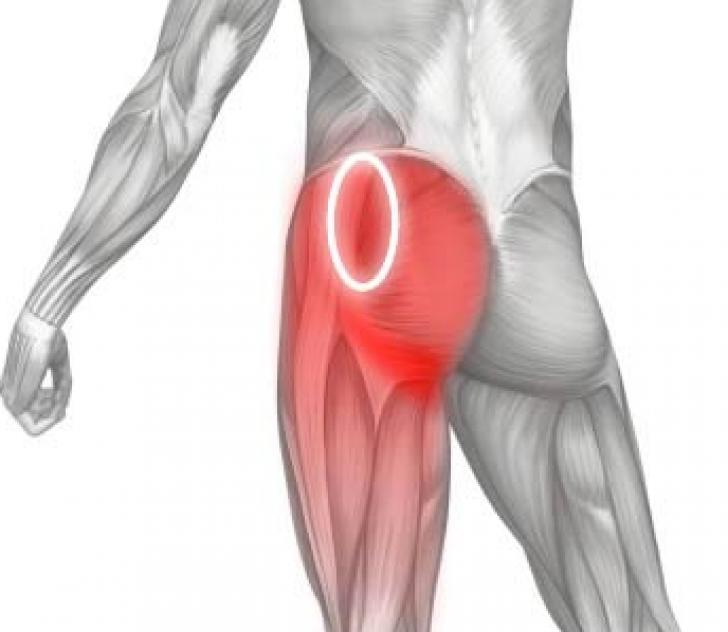 Боль в ягодичной мышце у мужчин и женщин: причины, диагностика и методы лечения