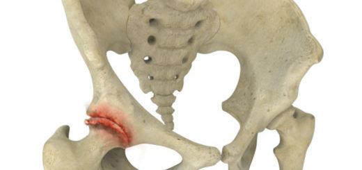 Хрустит тазобедренный сустав при вращении ноги