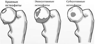 Краевые остеофиты тазобедренного сустава лечение