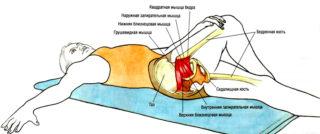 Синдром грушевидной мышцы упражнения