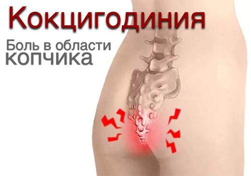 Кокцигодиния копчика: причины, формы, симптомы и лечение