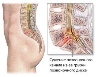 Каковы симптомы и как лечить грыжу копчика?