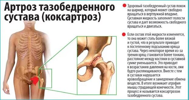 Комплексный сустав лечение периартрит лечение травмы коленного сустава