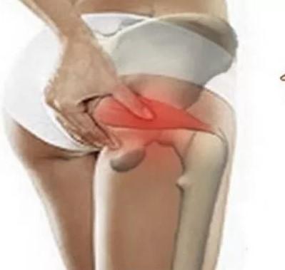Области распространения болей от мышц тазового дна