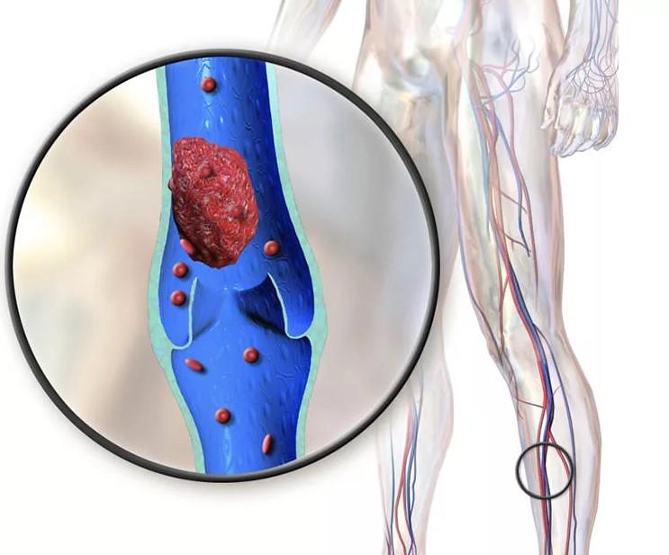 Варикоз на бедрах причины и лечение, варикоз на бедрах причины симптомы способы лечения и профилактики
