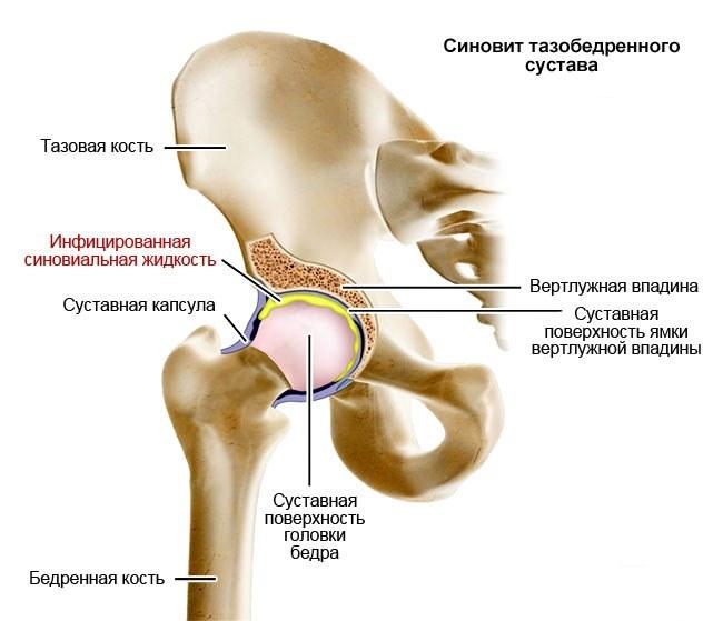 демодекс и боли в суставах