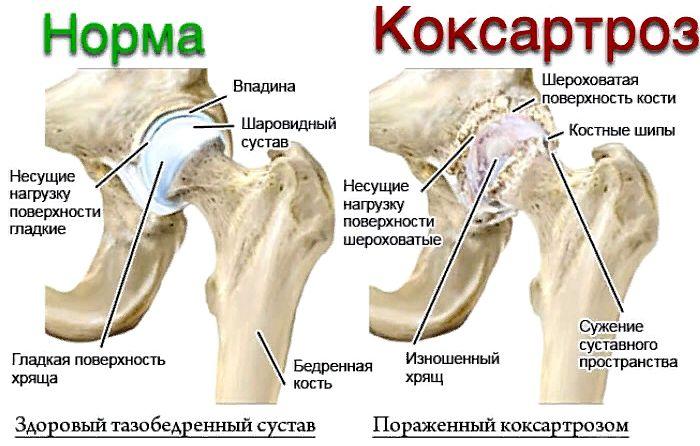Питание коксоартроз тазабедренного сустава курорты россии при заболеваниях суставов