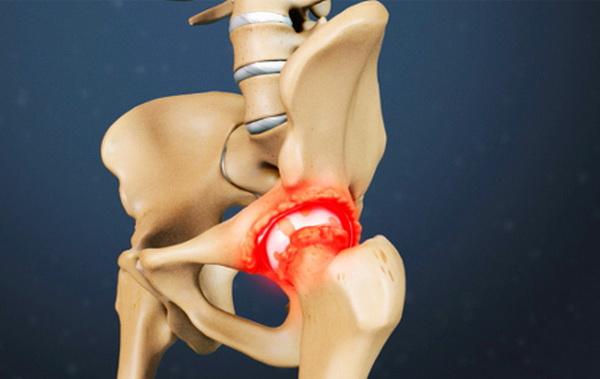 Артрозо артрит тазобедренного сустава лечебная гимнастика
