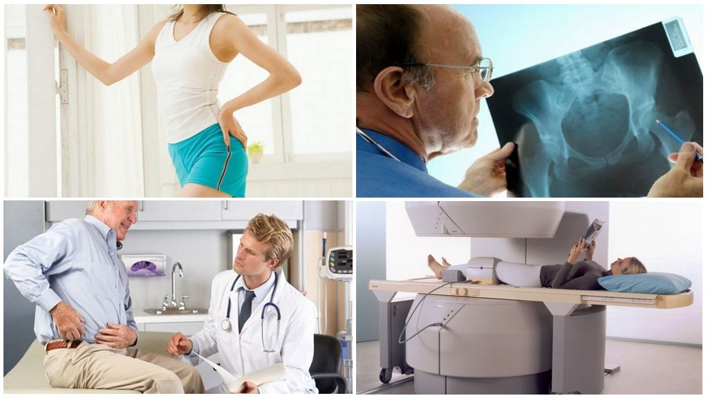 Что такое рентген терапия коксартроза тазобедренного сустава