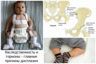 Изображение - Дисплазия суставов у детей последствия displaziya-tazobedrennyh-sustavov-u-rebenka-lechenie-v-4-goda-2-320x213