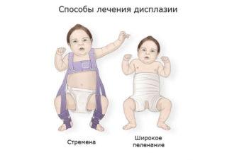 Изображение - Дисплазия суставов у детей последствия displaziya-u-detey-320x226