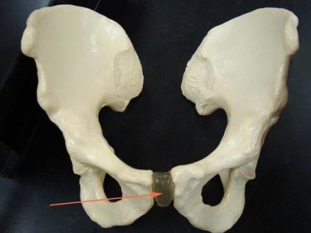 Воспаление лобкового симфиза