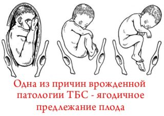 Изображение - Дисплазия суставов у детей последствия fiziologicheskaya-nezrelost-tazobedrennogo-sustava-u-novorozhdennyh-86-320x226