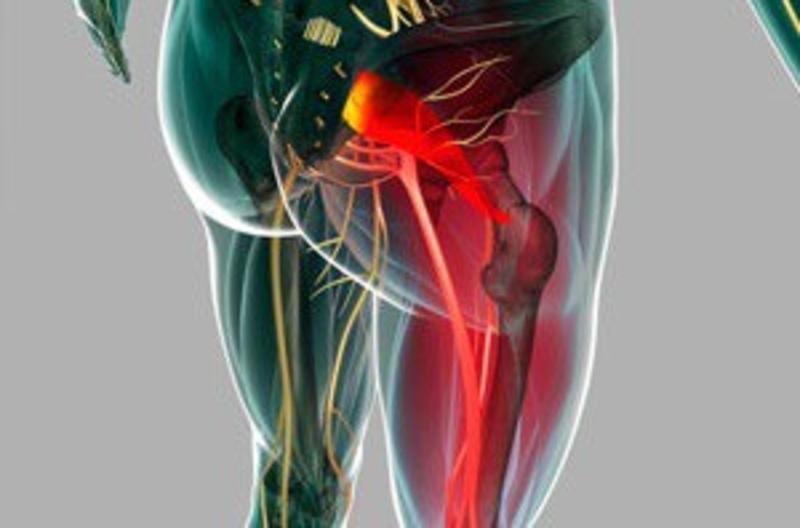 Синдром грушевидной мышцы: симптомы и лечение заболевания
