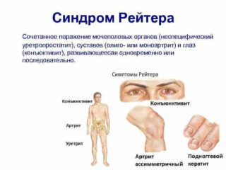 Изображение - Причины жжения тазобедренных суставов image-78-320x240