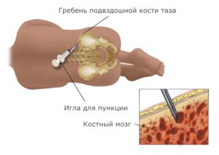 Переломы костей таза и тазобедренного сустава. Переломы бедра, костей коленного сустава