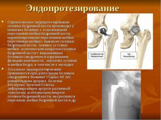 Изображение - Обострение коксартроза тазобедренного сустава лечение img19-1-320x240