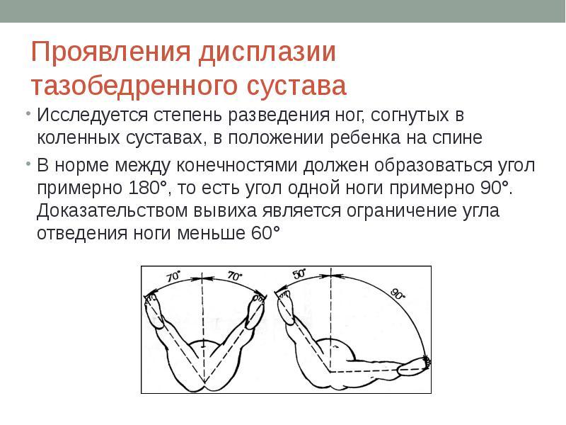 Дисплазия тазобедренных суставов физиотерапия лечение воспаления челюстных суставов