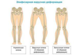 Изображение - Причины жжения тазобедренных суставов img3gk0p-31-320x215