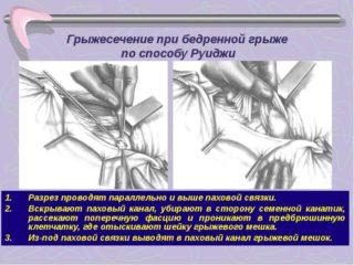 Бедренная грыжа у мужчин симптомы фото