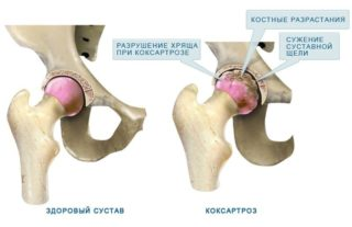 Периартрит тазобедренного сустава симптомы лечение