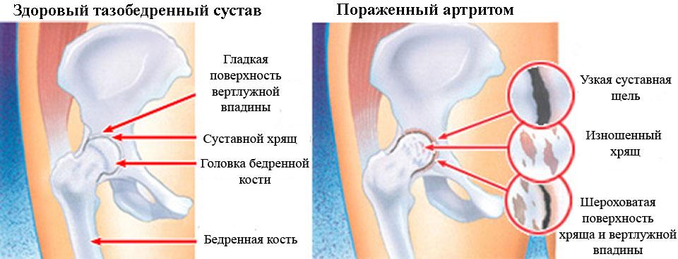 Причина болей в тазобедренном суставе ночью таранно-ладьевидный сустав артроз 1 степени