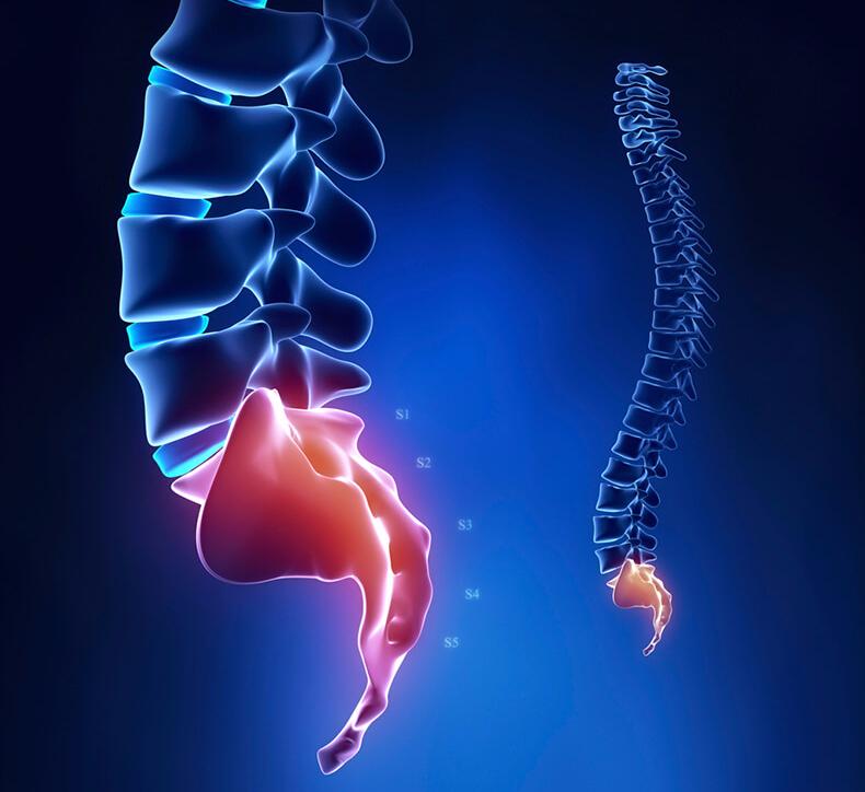 Опухоль на копчике причины симптомы лечение и профилактика