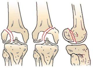 При переломе бедренной кости подлежат фиксации суставы