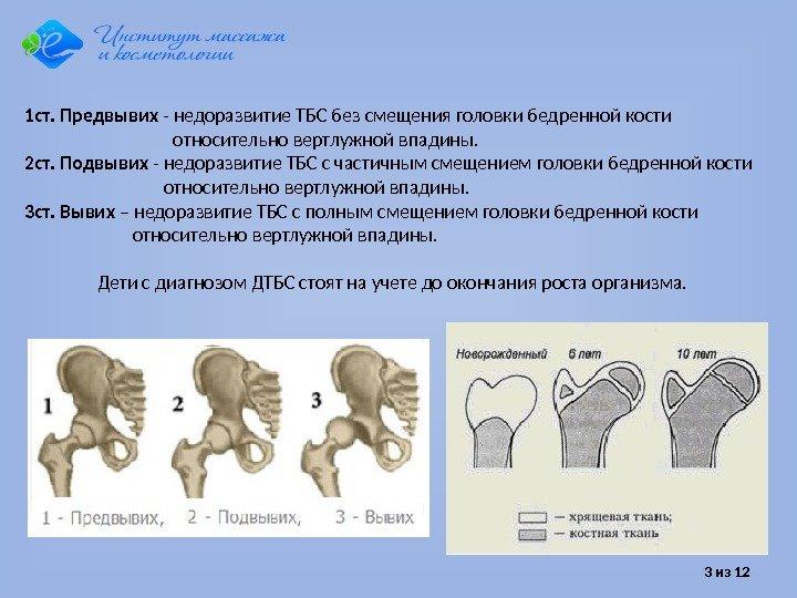 Что такое задержка оссификации тазобедренных суставов первый пястно-фаланговый сустав большого пальца