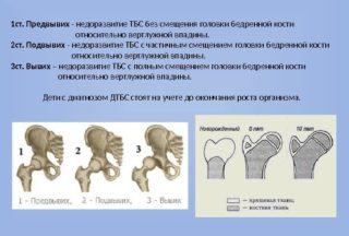 Изображение - Дисплазия суставов у детей последствия prezentaciya_k_diplomnoy_rabote_2-320x216