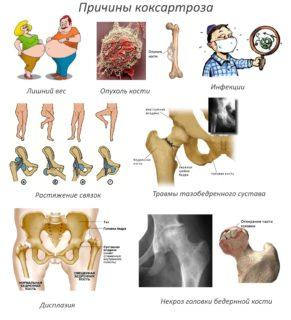 Изображение - Деформация тазобедренных суставов лечение prichiny-koksartroza-291x320
