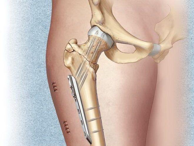 Противопоказания к эндопротезированию при переломах шейки бедра