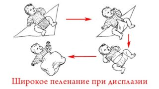 Изображение - Дисплазия суставов у детей последствия shirokoe-pelenanie-320x179