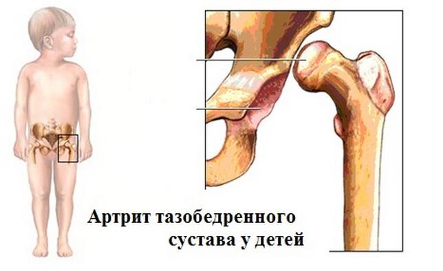 Артрит тазобедренного сустава у ребенка 4 года