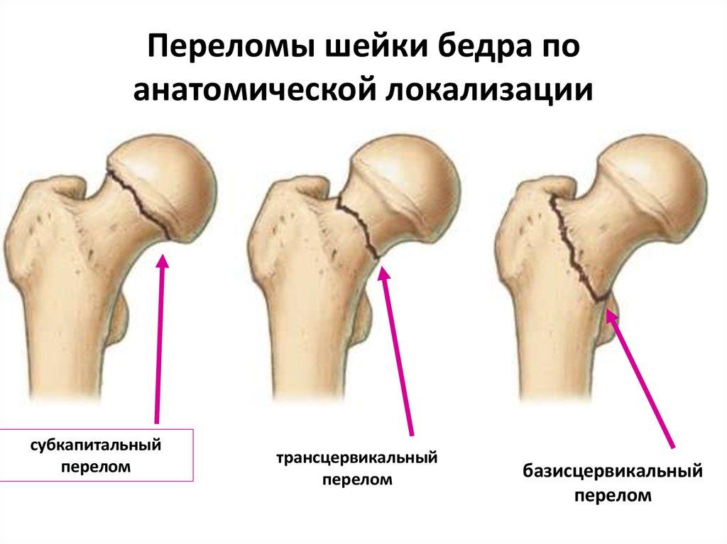 Жжение в бедренном суставе операции на плечевом суставе в екатеринбурге