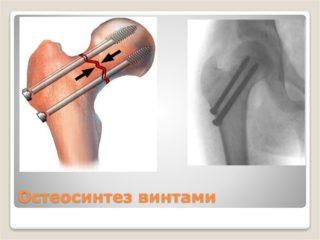 Перелом шейки бедра – симптомы, виды, последствия, лечение и операция при переломе шейки бедра
