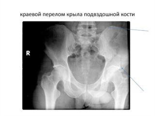 Остеохондропатия апофиза гребня подвздошной кости : Сайт практического рентгенолога