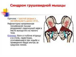 Синдром грушевидной мышцы — симптомы и лечение, упражнения