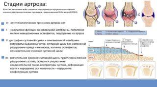 Изображение - Мануальная терапия при коксартрозе тазобедренного сустава техника slide-5-5-320x179