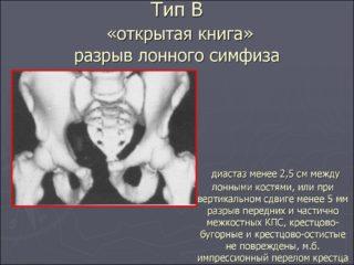 Что сделать чтобы лобковая кость не расходилась после родов