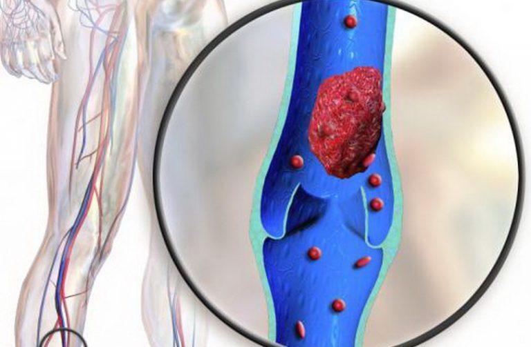 Тромбоз тазовых вен симптомы