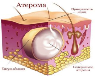 Липома на копчике признаки диагностика и лечение