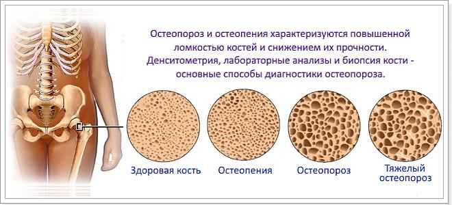 Боли при остеопорозе тазобедренного сустава препарат для суставов озоном