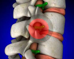 Ущемление нерва в поясничном отделе позвоночника, лечение